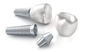 Implanty ADENT Dentysta Warszawa