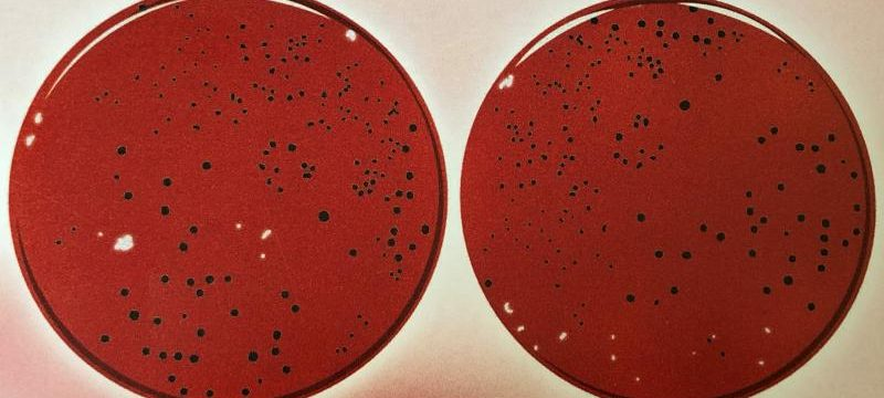 Bakterie zapalenia przyzębia